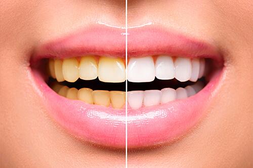 相模原市中央区の歯医者アオキ歯科クリニック、ホワイトニングイメージ